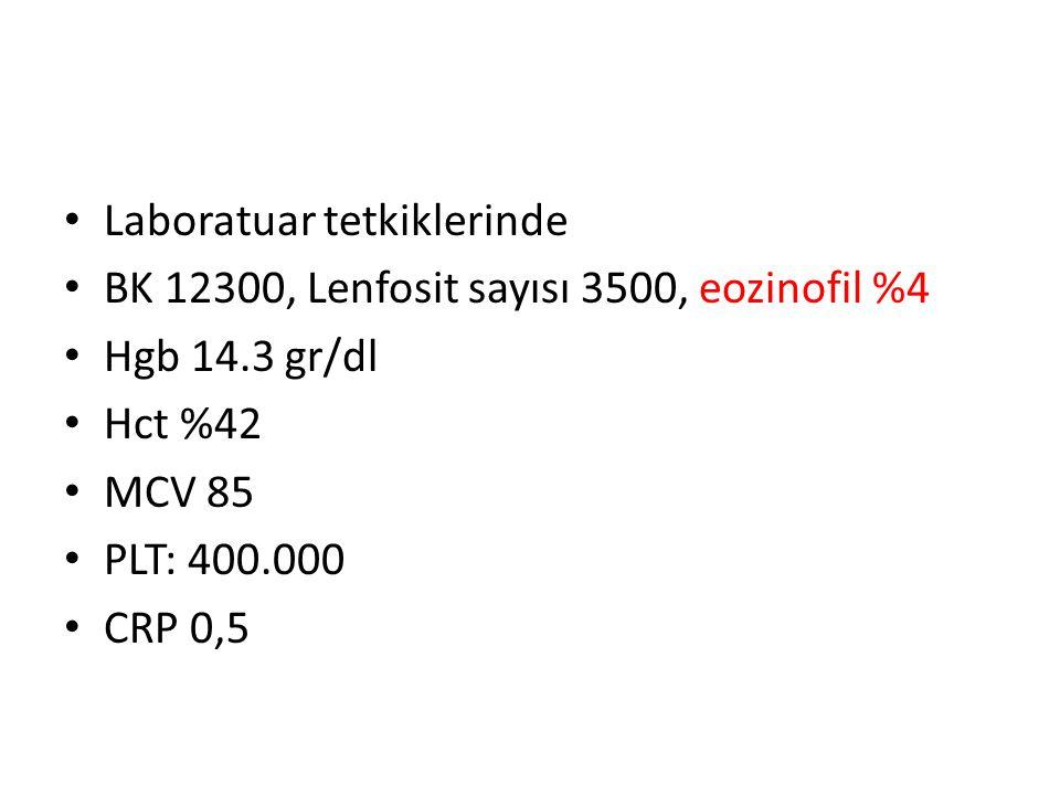 Laboratuar tetkiklerinde BK 12300, Lenfosit sayısı 3500, eozinofil %4 Hgb 14.3 gr/dl Hct %42 MCV 85 PLT: 400.000 CRP 0,5
