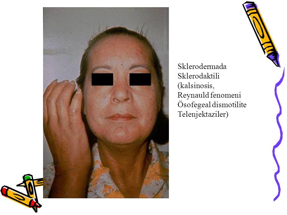 Sklerodermada Sklerodaktili (kalsinosis, Reynauld fenomeni Ösofegeal dismotilite Telenjektaziler)
