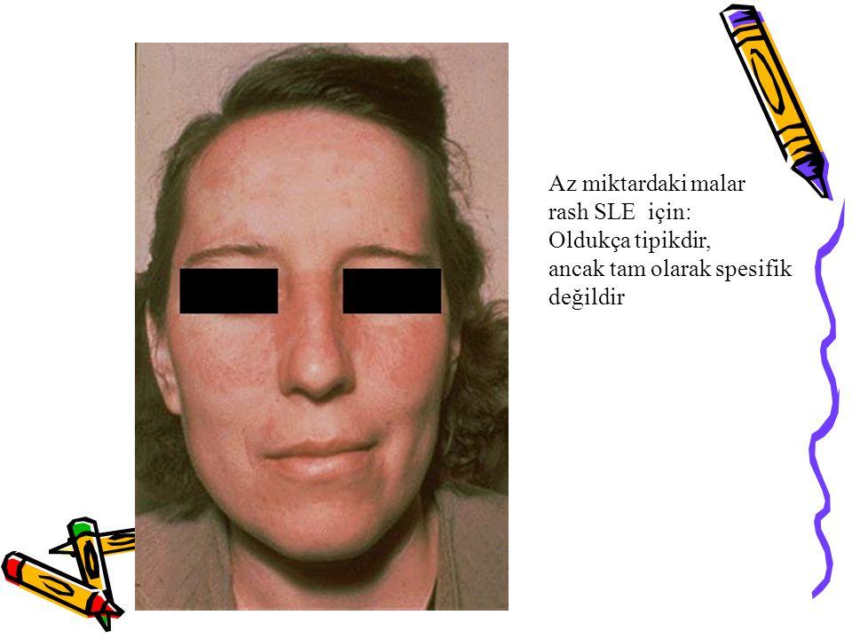 Az miktardaki malar rash SLE için: Oldukça tipikdir, ancak tam olarak spesifik değildir