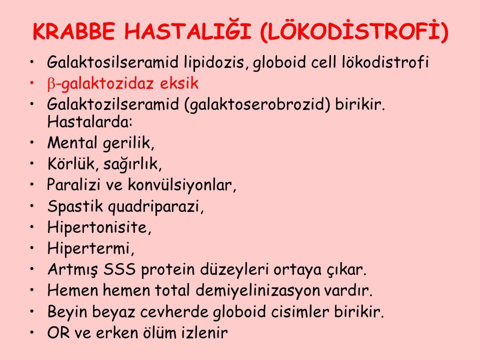 KRABBE HASTALIĞI (LÖKODİSTROFİ) Galaktosilseramid lipidozis, globoid cell lökodistrofi  -galaktozidaz eksik Galaktozilseramid (galaktoserobrozid) bir
