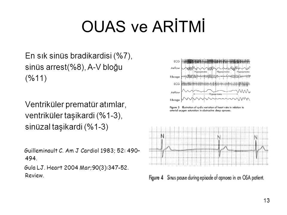 13 OUAS ve ARİTMİ En sık sinüs bradikardisi (%7), sinüs arrest(%8), A-V bloğu (%11) Ventriküler prematür atımlar, ventriküler taşikardi (%1-3), sinüza