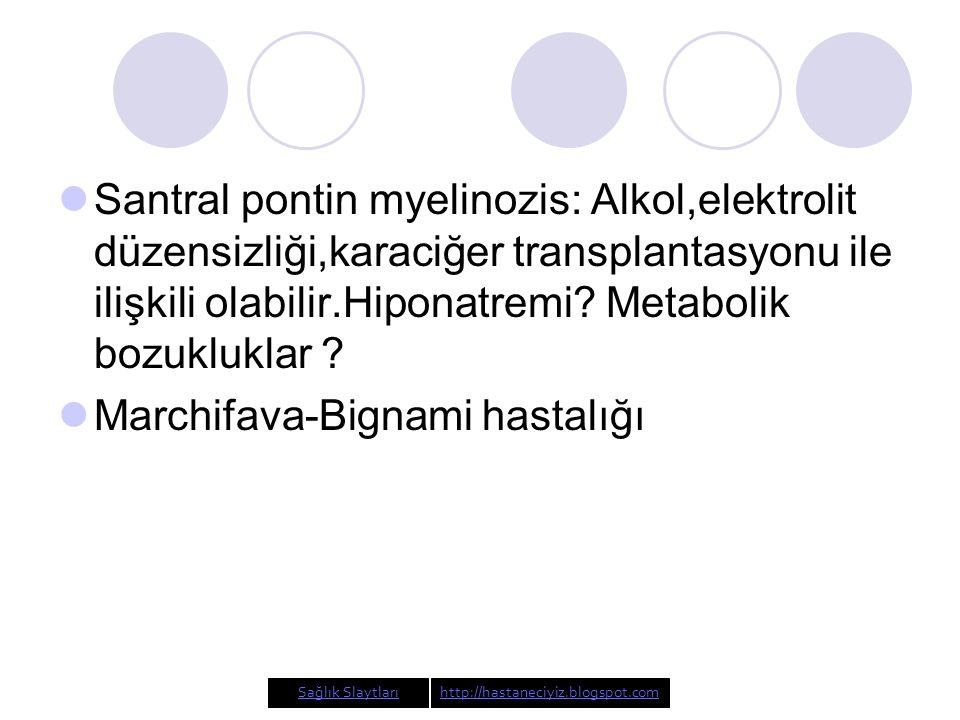 Santral pontin myelinozis: Alkol,elektrolit düzensizliği,karaciğer transplantasyonu ile ilişkili olabilir.Hiponatremi.