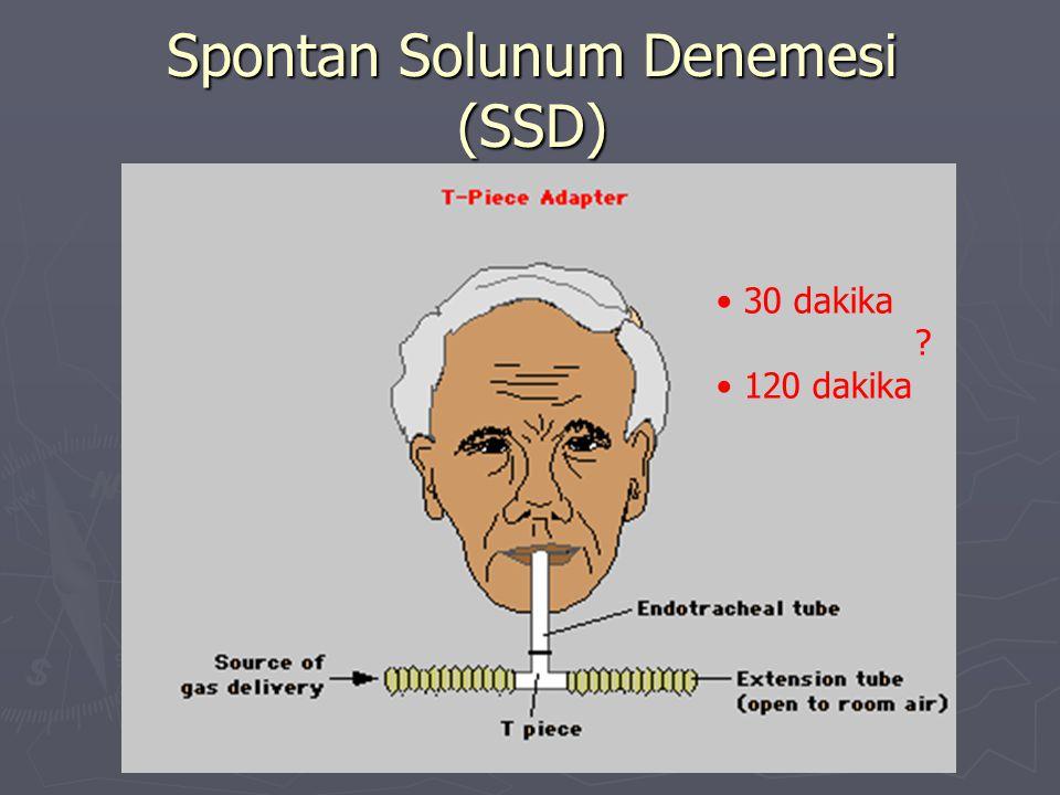 Spontan Solunum Denemesi (SSD) 30 dakika ? 120 dakika