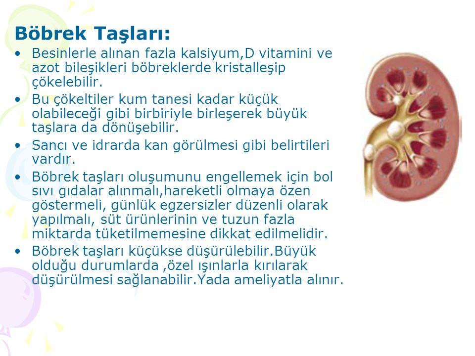 Böbrek Taşları: Besinlerle alınan fazla kalsiyum,D vitamini ve azot bileşikleri böbreklerde kristalleşip çökelebilir. Bu çökeltiler kum tanesi kadar k