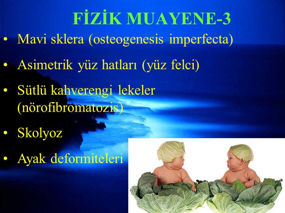 Mavi sklera (osteogenesis imperfecta) Asimetrik yüz hatları (yüz felci) Sütlü kahverengi lekeler (nörofibromatozis) Skolyoz Ayak deformiteleri FİZİK M