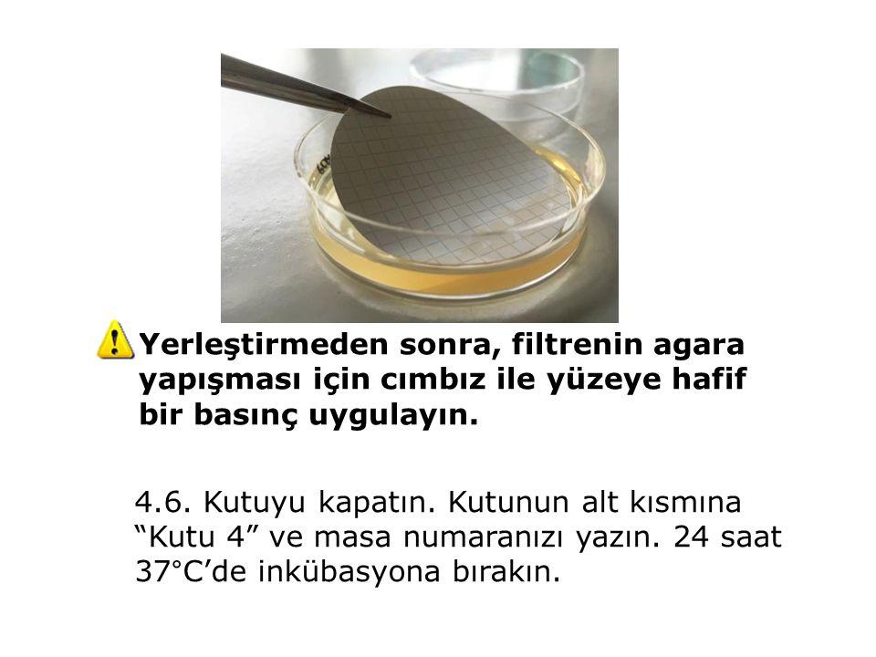 Yerleştirmeden sonra, filtrenin agara yapışması için cımbız ile yüzeye hafif bir basınç uygulayın.