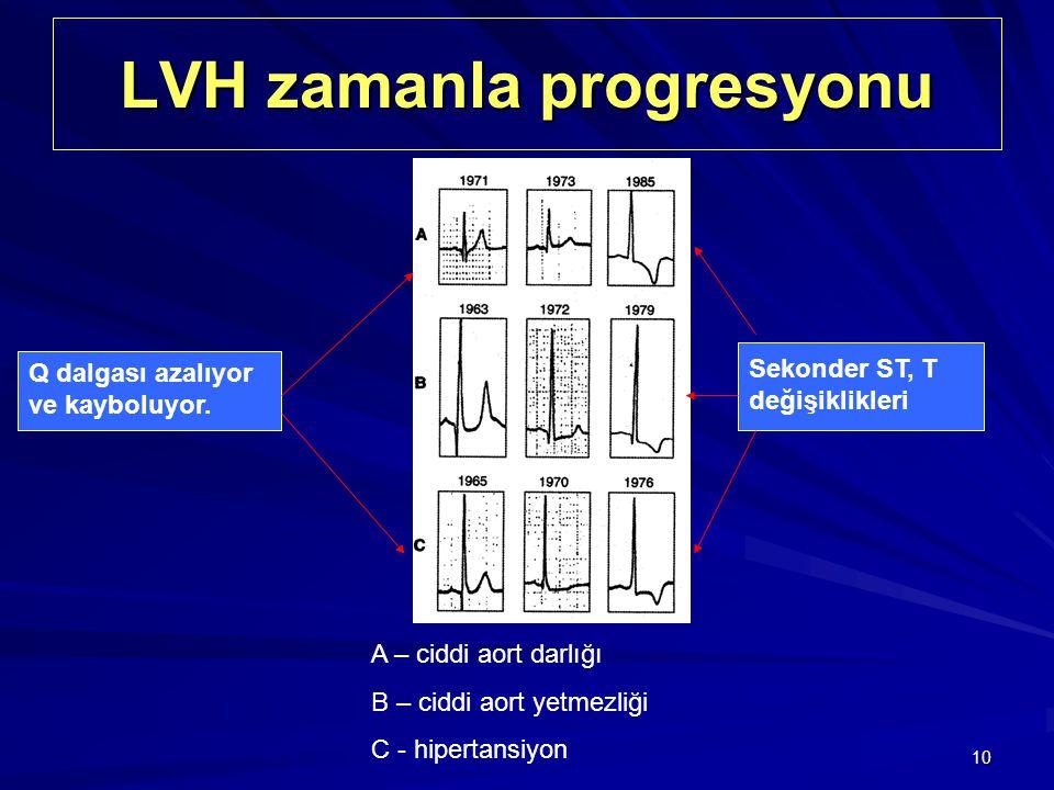 10 LVH zamanla progresyonu A – ciddi aort darlığı B – ciddi aort yetmezliği C - hipertansiyon Q dalgası azalıyor ve kayboluyor. Sekonder ST, T değişik