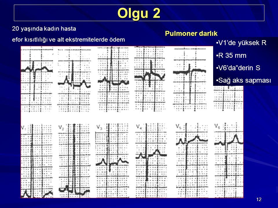 """12 Olgu 2 20 yaşında kadın hasta efor kısıtlılığı ve alt ekstremitelerde ödem Pulmoner darlık V1'de yüksek R R 35 mm V6'da""""derin S Sağ aks sapması"""