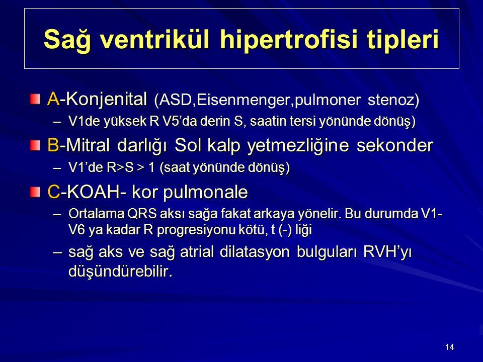 14 Sağ ventrikül hipertrofisi tipleri A-Konjenital A-Konjenital (ASD,Eisenmenger,pulmoner stenoz) –V1de yüksek R V5'da derin S, saatin tersi yönünde d