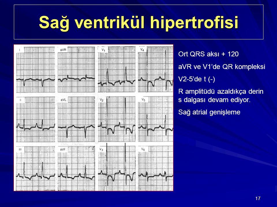 17 Sağ ventrikül hipertrofisi Ort QRS aksı + 120 aVR ve V1'de QR kompleksi V2-5'de t (-) R amplitüdü azaldıkça derin s dalgası devam ediyor. Sağ atria