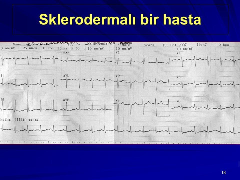 18 Sklerodermalı bir hasta