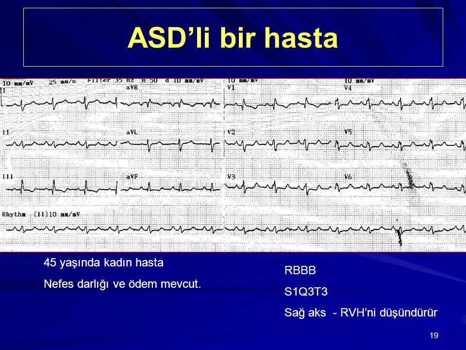 19 ASD'li bir hasta 45 yaşında kadın hasta Nefes darlığı ve ödem mevcut. RBBB S1Q3T3 Sağ aks - RVH'ni düşündürür