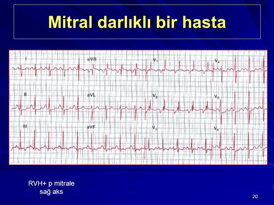 20 Mitral darlıklı bir hasta RVH+ p mitrale sağ aks