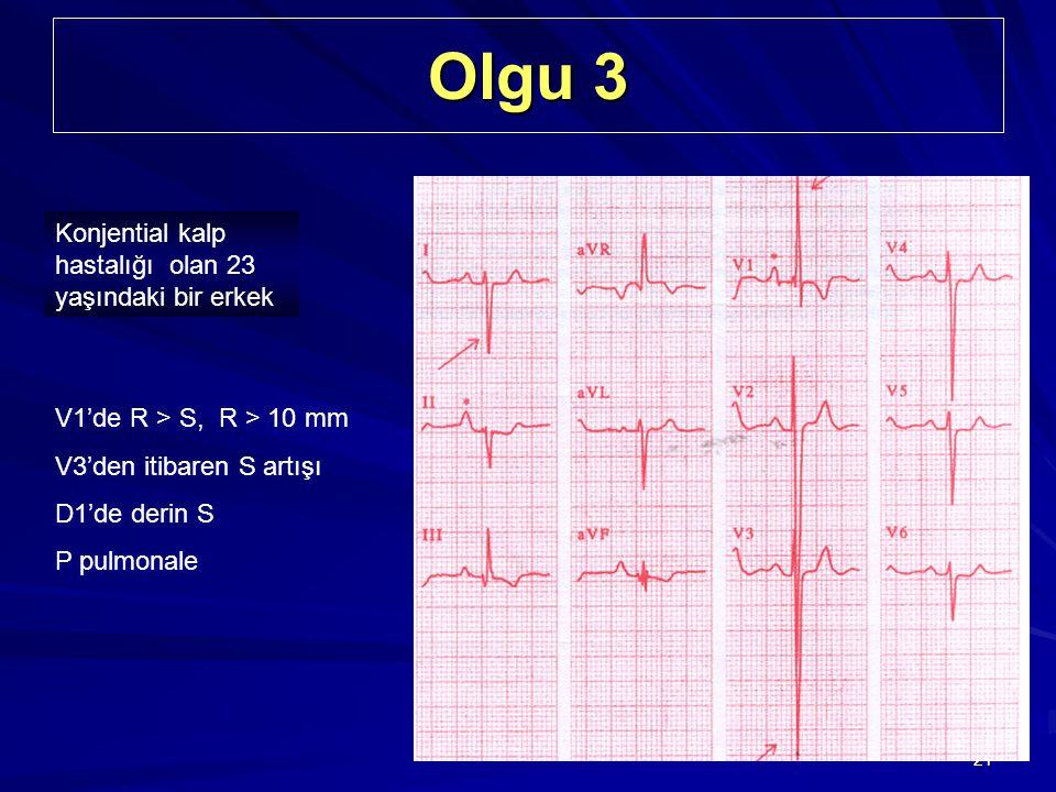 21 Olgu 3 Konjential kalp hastalığı olan 23 yaşındaki bir erkek V1'de R > S, R > 10 mm V3'den itibaren S artışı D1'de derin S P pulmonale V1'de R > S,