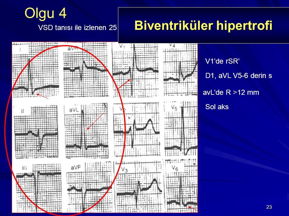 23 V1'de rSR' Olgu 4 VSD tanısı ile izlenen 25 yaşında erkek hasta D1, aVL V5-6 derin s avL'de R >12 mm Sol aks Biventriküler hipertrofi