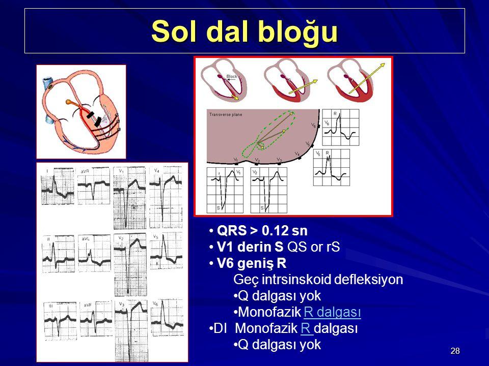 28 Sol dal bloğu QRS > 0.12 sn V1 derin S QS or rS V6 geniş R Geç intrsinskoid defleksiyon Q dalgası yok Monofazik R dalgasıR dalgası DI Monofazik R d