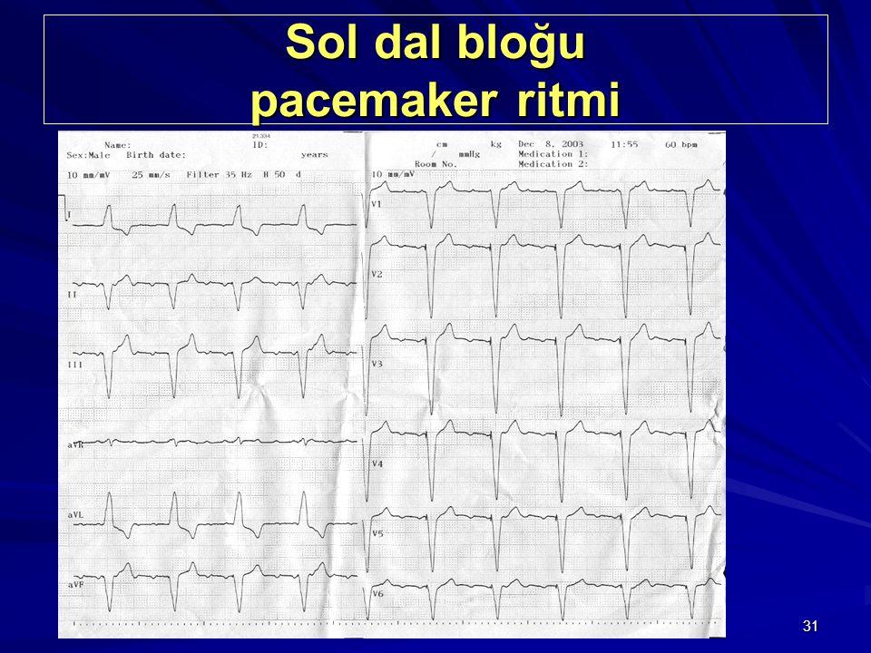 31 Sol dal bloğu pacemaker ritmi