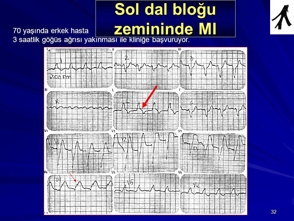 32 Olgu 6 70 yaşında erkek hasta 3 saatlik göğüs ağrısı yakınması ile kliniğe başvuruyor. Sol dal bloğu zemininde MI