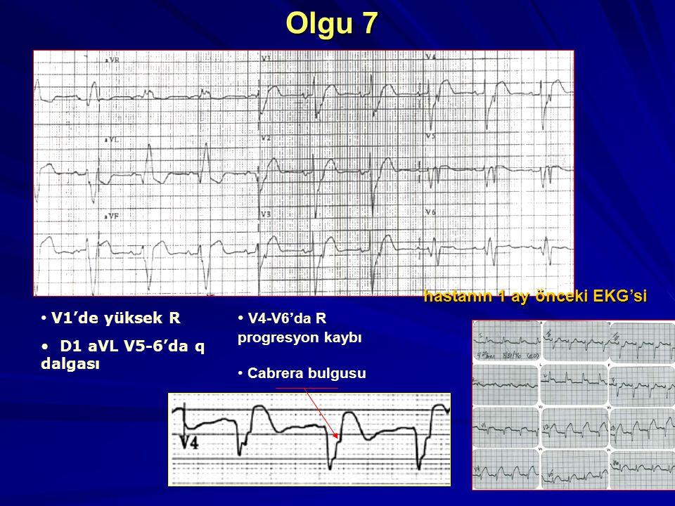 34 Olgu 7 V1'de yüksek R D1 aVL V5-6'da q dalgası V4-V6'da R progresyon kaybı Cabrera bulgusu hastanın 1 ay önceki EKG'si
