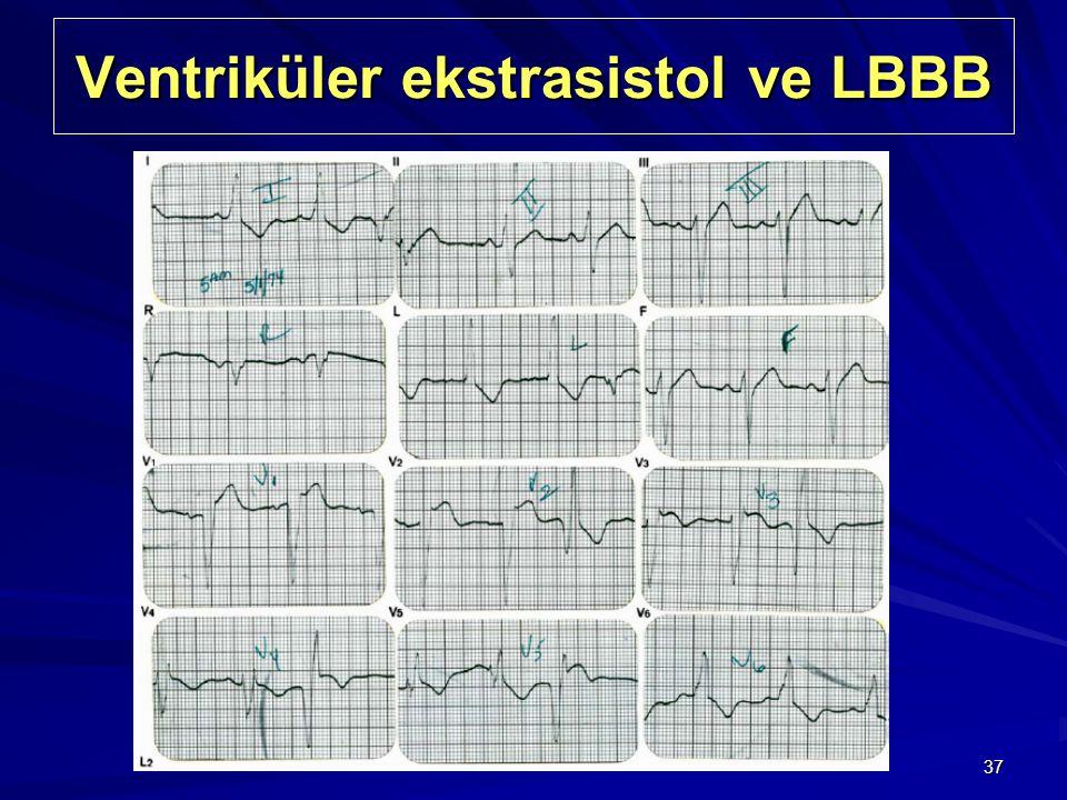 37 Ventriküler ekstrasistol ve LBBB