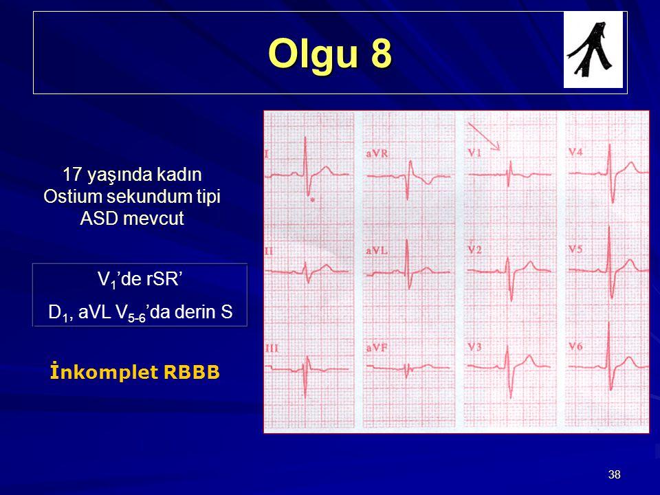 38 Olgu 8 17 yaşında kadın Ostium sekundum tipi ASD mevcut V 1 'de rSR' D 1, aVL V 5-6 'da derin S İnkomplet RBBB