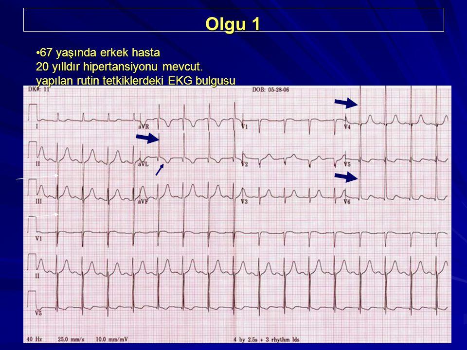 4 Olgu 1 67 yaşında erkek hasta 20 yılldır hipertansiyonu mevcut. yapılan rutin tetkiklerdeki EKG bulgusu67 yaşında erkek hasta 20 yılldır hipertansiy