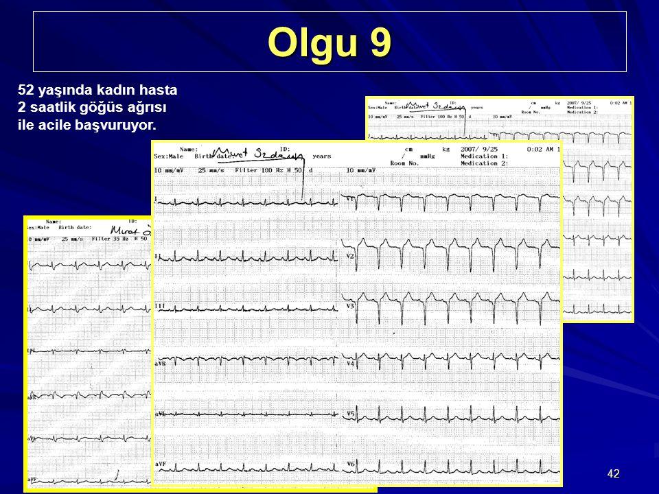 42 Olgu 9 52 yaşında kadın hasta 2 saatlik göğüs ağrısı ile acile başvuruyor. Başvurudan birkaç saat sonra çekilen EKG MI sonrası sağ dal bloğu