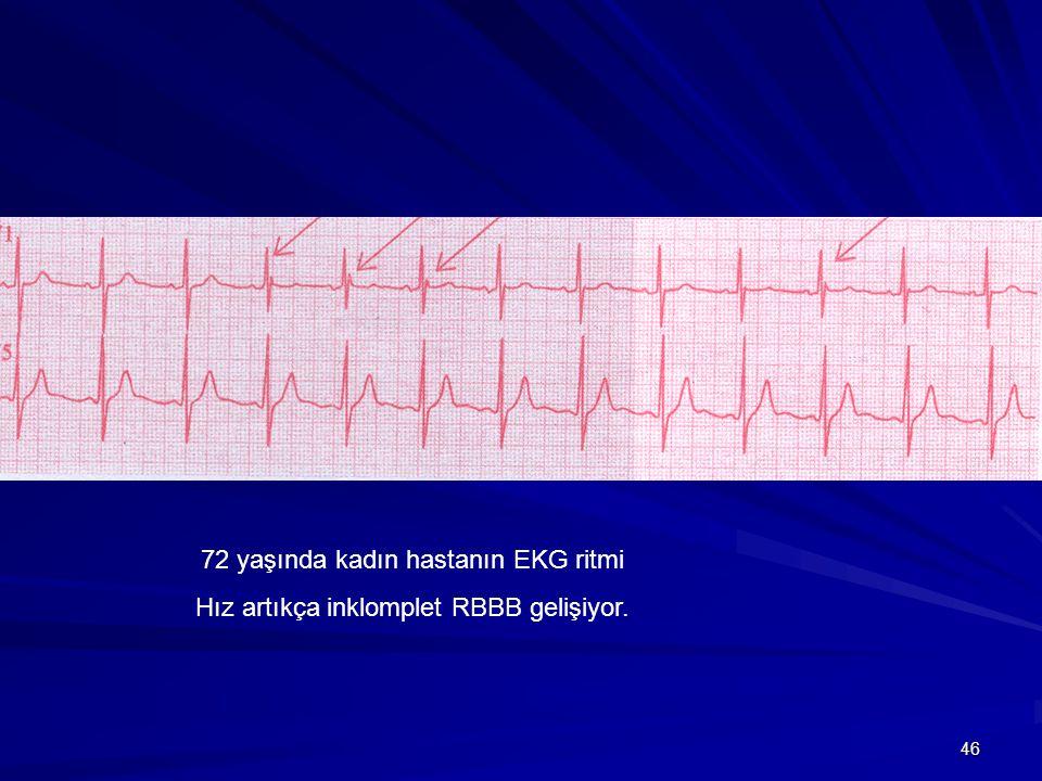 46 72 yaşında kadın hastanın EKG ritmi Hız artıkça inklomplet RBBB gelişiyor.