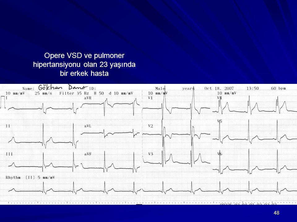 48 Opere VSD ve pulmoner hipertansiyonu olan 23 yaşında bir erkek hasta