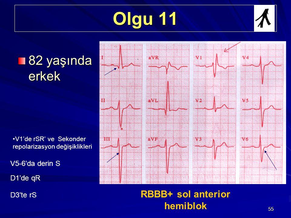 55 Olgu 11 82 yaşında erkek RBBB+ sol anterior hemiblok V1'de rSR' ve Sekonder repolarizasyon değişiklikleri V5-6'da derin S D1'de qR D3'te rS