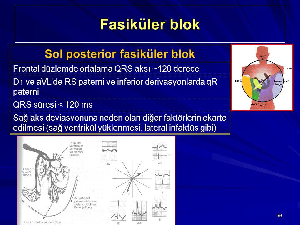 56 Fasiküler blok Sol posterior fasiküler blok Frontal düzlemde ortalama QRS aksı ~120 derece D 1 ve aVL'de RS paterni ve inferior derivasyonlarda qR