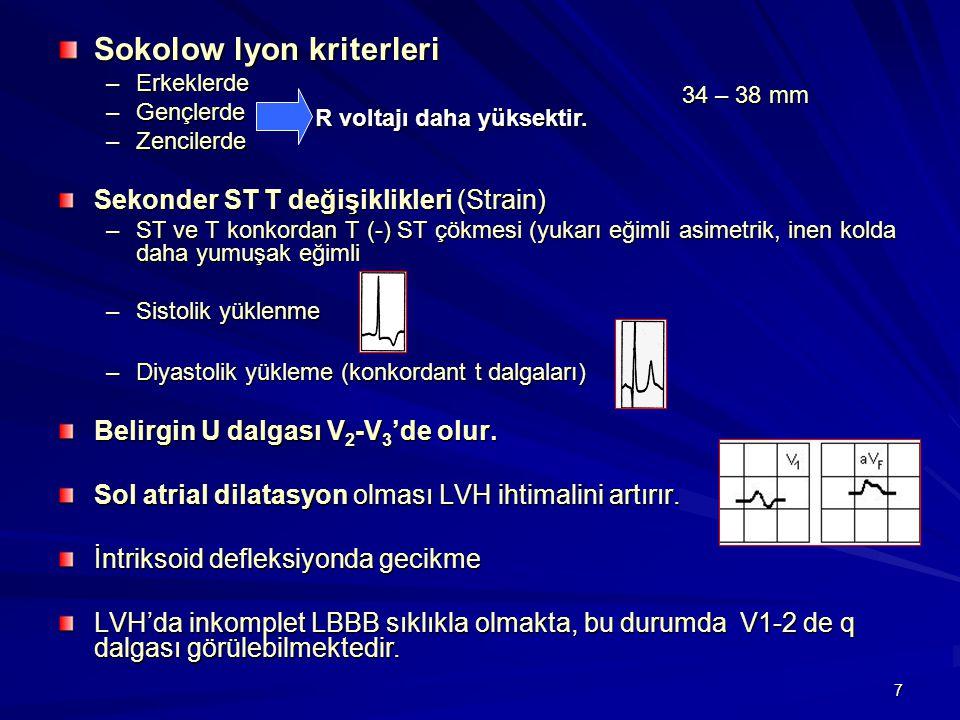 7 Sokolow lyon kriterleri –Erkeklerde –Gençlerde –Zencilerde Sekonder ST T değişiklikleri (Strain) –ST ve T konkordan T (-) ST çökmesi (yukarı eğimli