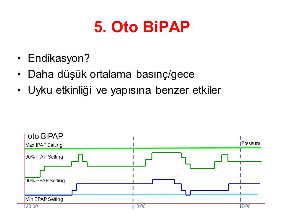 oto BiPAP Max IPAP Setting Min EPAP Setting 23:003:007:00 Pressure 90% IPAP Setting 90% EPAP Setting 5.