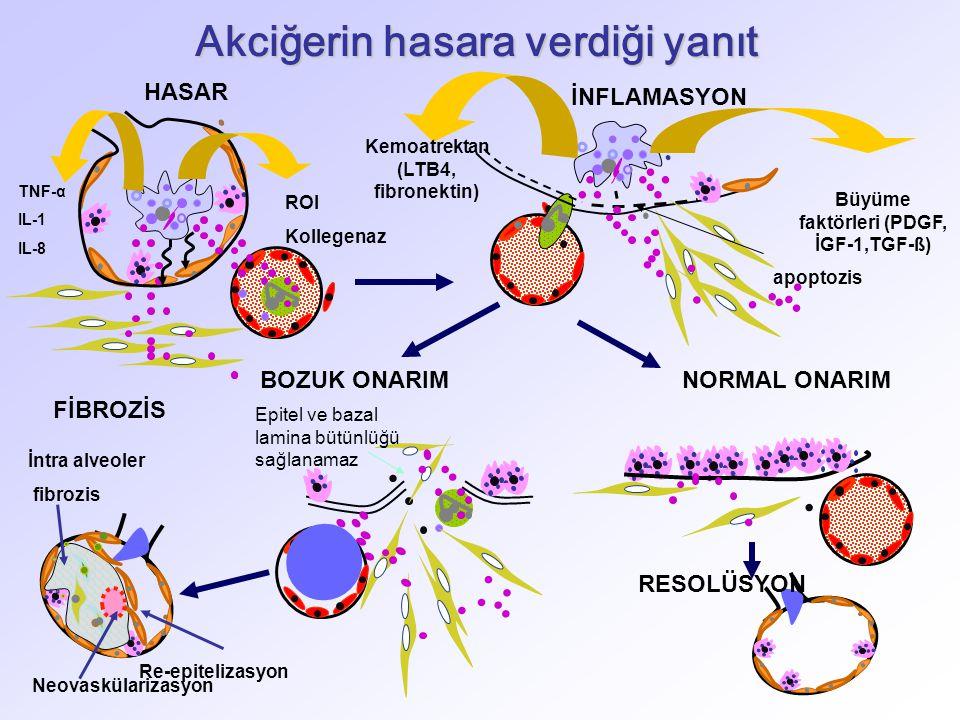 TNF-α IL-1 IL-8 ROI Kollegenaz HASAR RESOLÜSYON Re-epitelizasyon İntra alveoler fibrozis Neovaskülarizasyon FİBROZİS BOZUK ONARIM Epitel ve bazal lamina bütünlüğü sağlanamaz İNFLAMASYON Kemoatrektan (LTB4, fibronektin) Büyüme faktörleri (PDGF, İGF-1,TGF-ß) apoptozis Akciğerin hasara verdiği yanıt