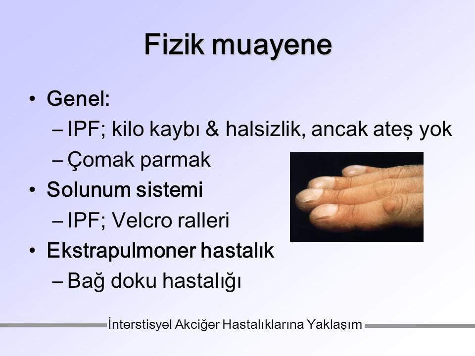 Fizik muayene Genel: –IPF; kilo kaybı & halsizlik, ancak ateş yok –Çomak parmak Solunum sistemi –IPF; Velcro ralleri Ekstrapulmoner hastalık –Bağ doku hastalığı İnterstisyel Akciğer Hastalıklarına Yaklaşım
