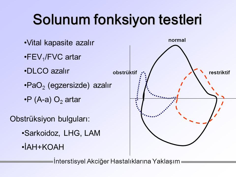 Solunum fonksiyon testleri Vital kapasite azalır FEV 1 /FVC artar DLCO azalır PaO 2 (egzersizde) azalır P (A-a) O 2 artar normal restriktifobstrüktif İnterstisyel Akciğer Hastalıklarına Yaklaşım Obstrüksiyon bulguları: Sarkoidoz, LHG, LAM İAH+KOAH