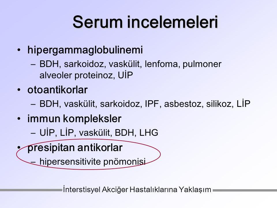 hipergammaglobulinemi –BDH, sarkoidoz, vaskülit, lenfoma, pulmoner alveoler proteinoz, UİP otoantikorlar –BDH, vaskülit, sarkoidoz, IPF, asbestoz, silikoz, LİP immun kompleksler –UİP, LİP, vaskülit, BDH, LHG presipitan antikorlar –hipersensitivite pnömonisi Serum incelemeleri İnterstisyel Akciğer Hastalıklarına Yaklaşım