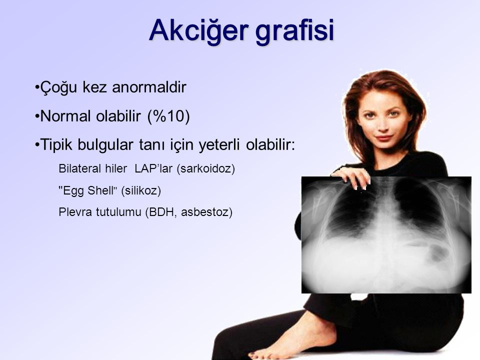 Akciğer grafisi Çoğu kez anormaldir Normal olabilir (%10) Tipik bulgular tanı için yeterli olabilir: Bilateral hiler LAP'lar (sarkoidoz) Egg Shell (silikoz) Plevra tutulumu (BDH, asbestoz)