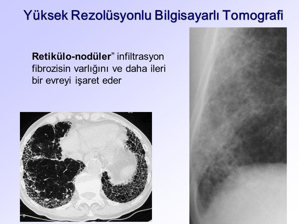 Yüksek Rezolüsyonlu Bilgisayarlı Tomografi Retikülo-nodüler infiltrasyon fibrozisin varlığını ve daha ileri bir evreyi işaret eder