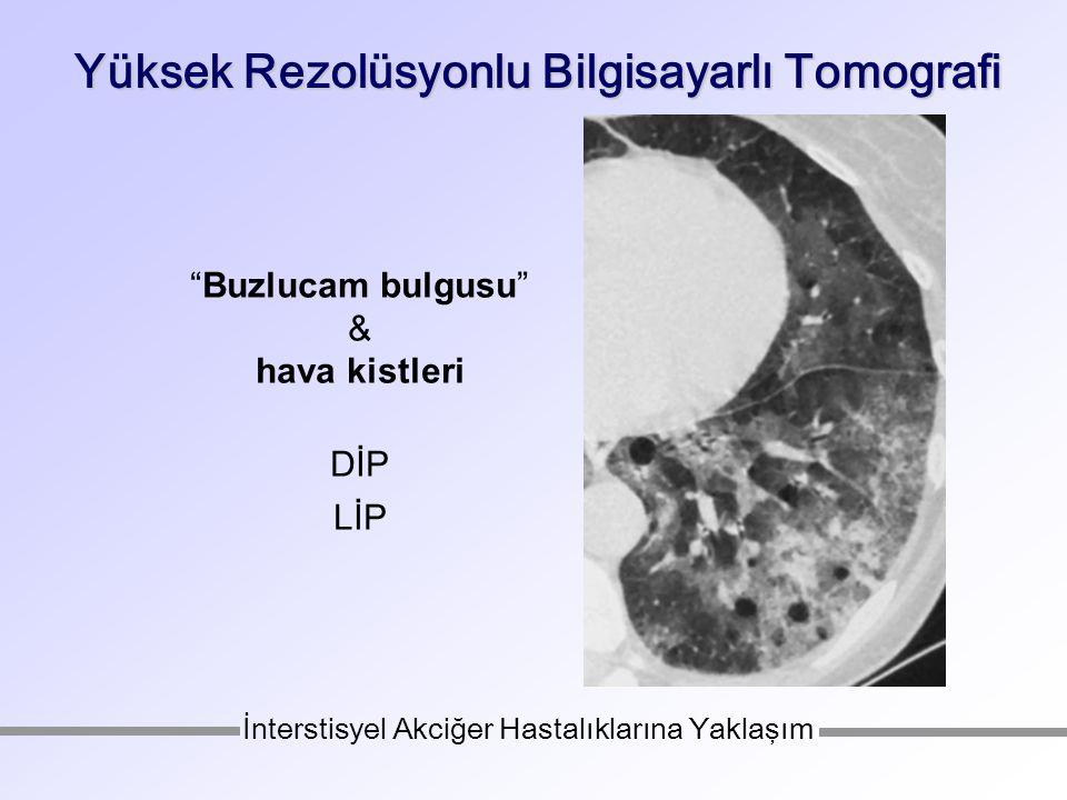 Yüksek Rezolüsyonlu Bilgisayarlı Tomografi Buzlucam bulgusu & hava kistleri DİP LİP İnterstisyel Akciğer Hastalıklarına Yaklaşım
