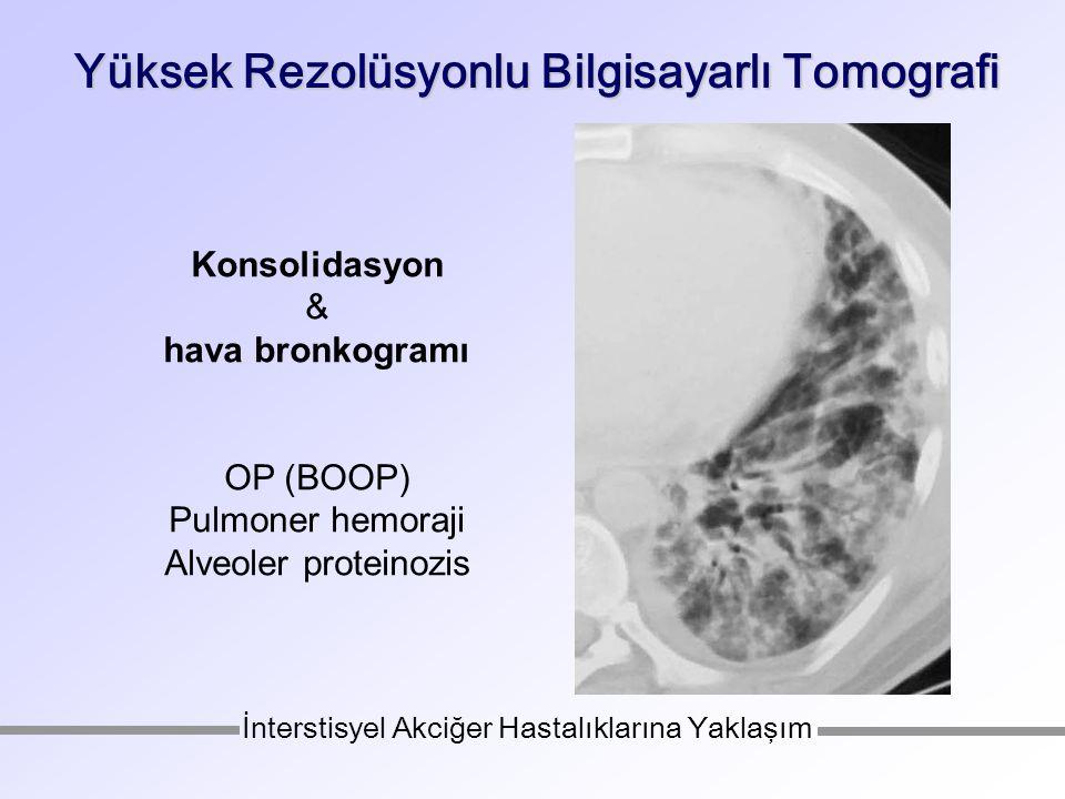 Yüksek Rezolüsyonlu Bilgisayarlı Tomografi Konsolidasyon & hava bronkogramı OP (BOOP) Pulmoner hemoraji Alveoler proteinozis İnterstisyel Akciğer Hastalıklarına Yaklaşım