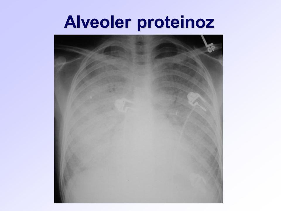 Alveoler proteinoz