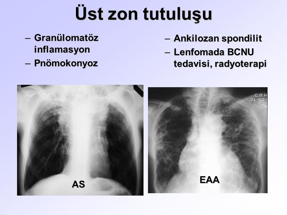 Üst zon tutuluşu AS EAA –Granülomatöz inflamasyon –Pnömokonyoz –Ankilozan spondilit –Lenfomada BCNU tedavisi, radyoterapi