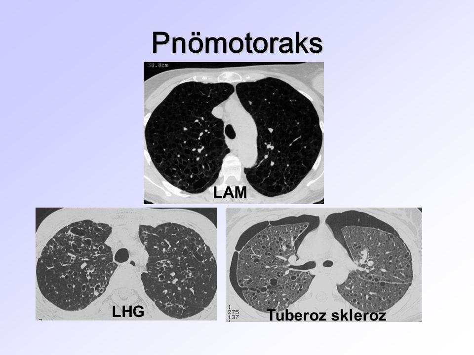 Pnömotoraks LAM LHG Tuberoz skleroz