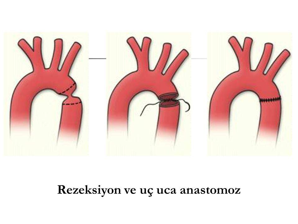 Rezeksiyon ve uç uca anastomoz
