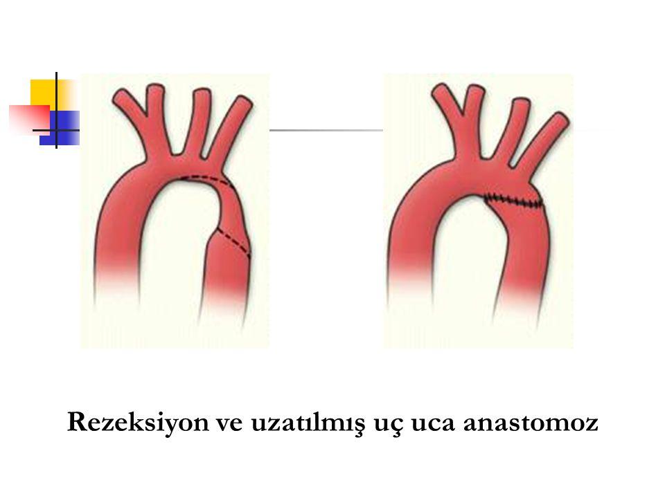 Rezeksiyon ve uzatılmış uç uca anastomoz