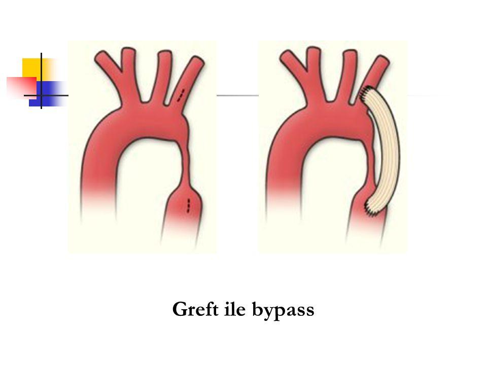 Greft ile bypass