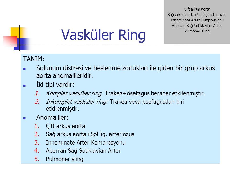 Vasküler Ring TANIM: Solunum distresi ve beslenme zorlukları ile giden bir grup arkus aorta anomalileridir. İki tipi vardır: 1.Komplet vasküler ring: