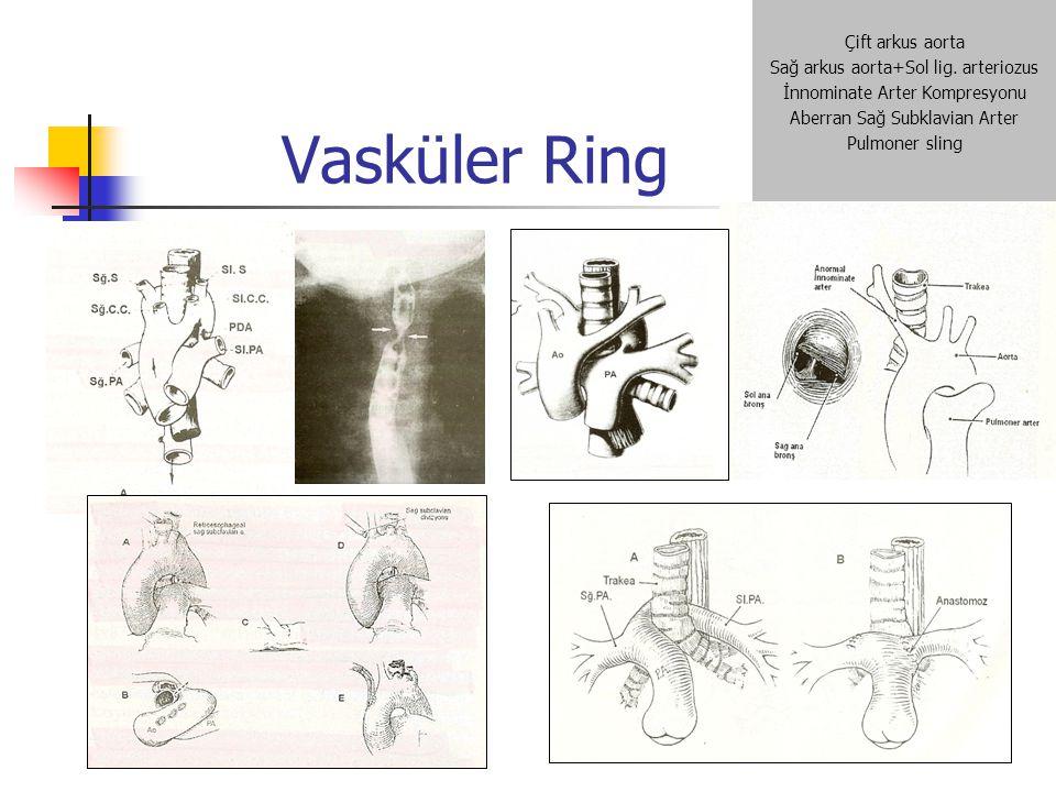 Vasküler Ring Çift arkus aorta Sağ arkus aorta+Sol lig. arteriozus İnnominate Arter Kompresyonu Aberran Sağ Subklavian Arter Pulmoner sling