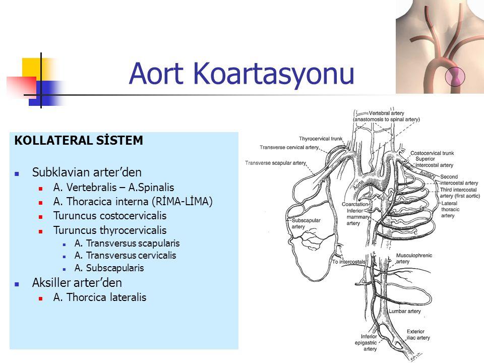 KOLLATERAL SİSTEM Subklavian arter'den A. Vertebralis – A.Spinalis A. Thoracica interna (RİMA-LİMA) Turuncus costocervicalis Turuncus thyrocervicalis